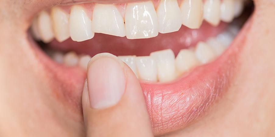 Värt att veta om tandimplantat